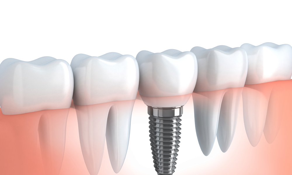 Need Same Day Dental Implant: Understand The Basics