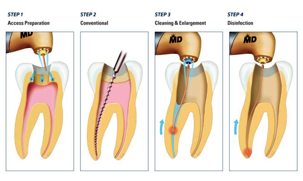 Know Much About the Endodontic Treatment of Malvern?