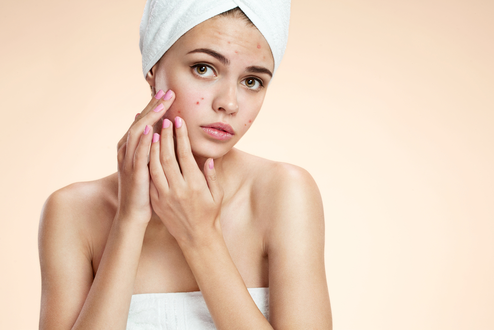 Understanding the Life Cycle of acne and How to Get Rid of it