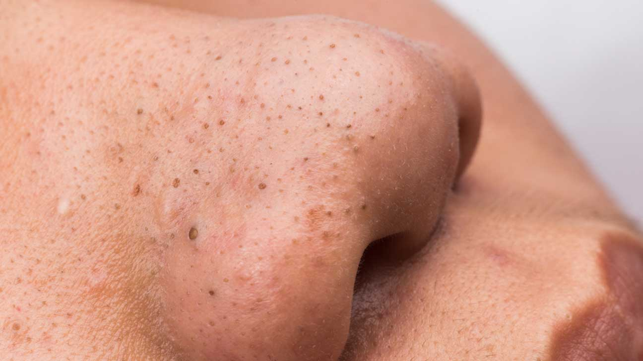 How To Get Rid Of Blackheads On Cheeks – 10 Home Remedies