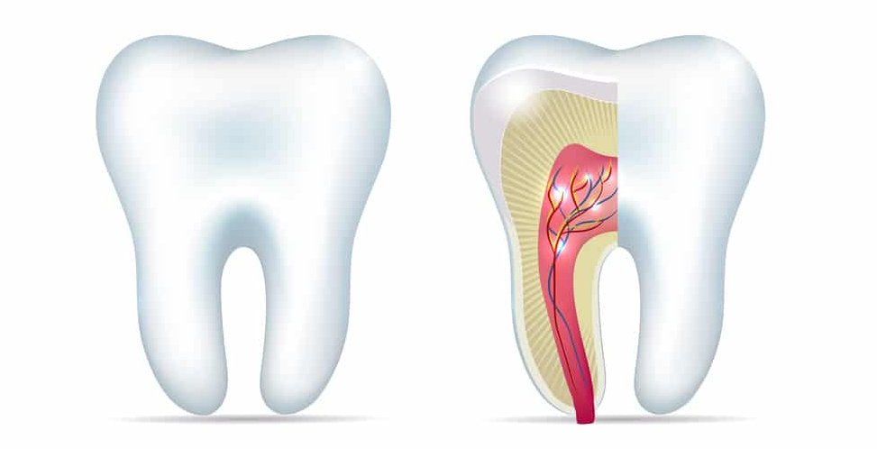 Why root canal therapy?