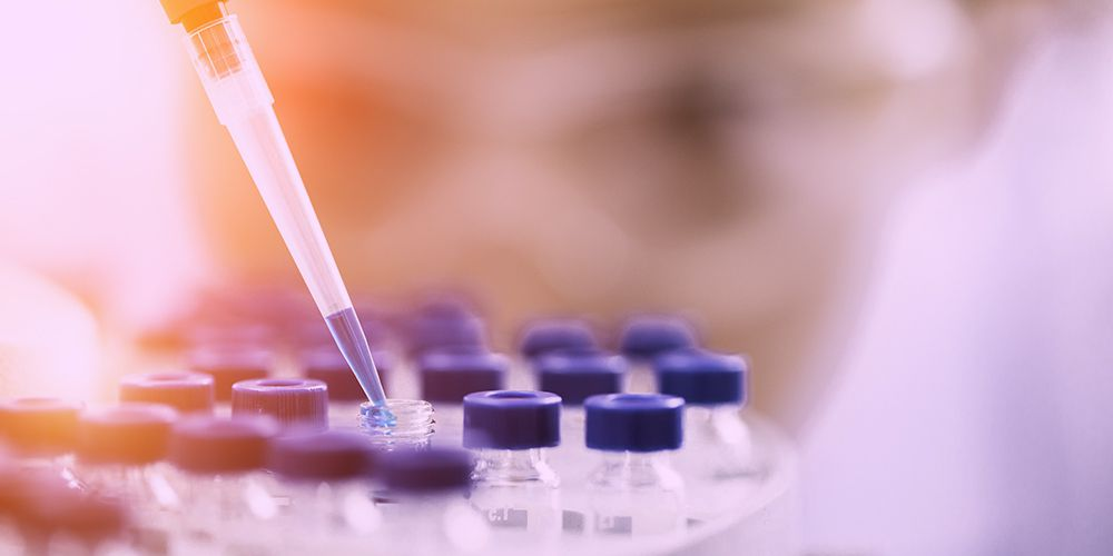 Different Types of Chromatography Procedures Used by Research Scientists