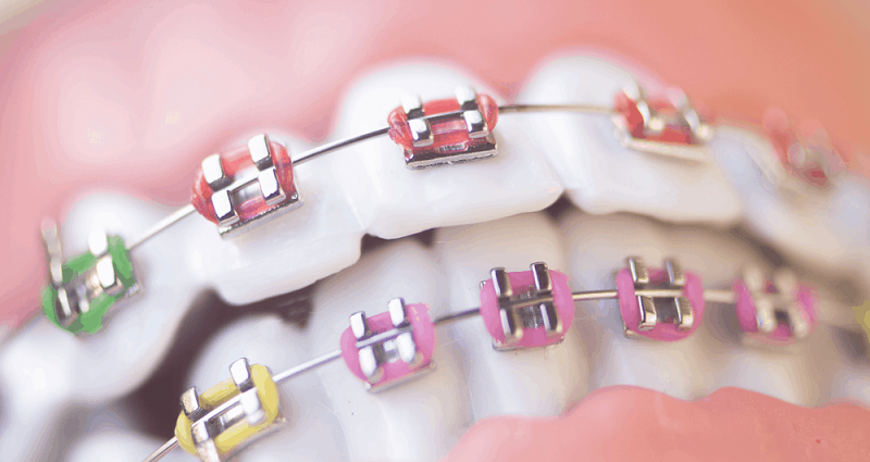 Why Orthodontics Treatment Is Good for Your Dental Health?