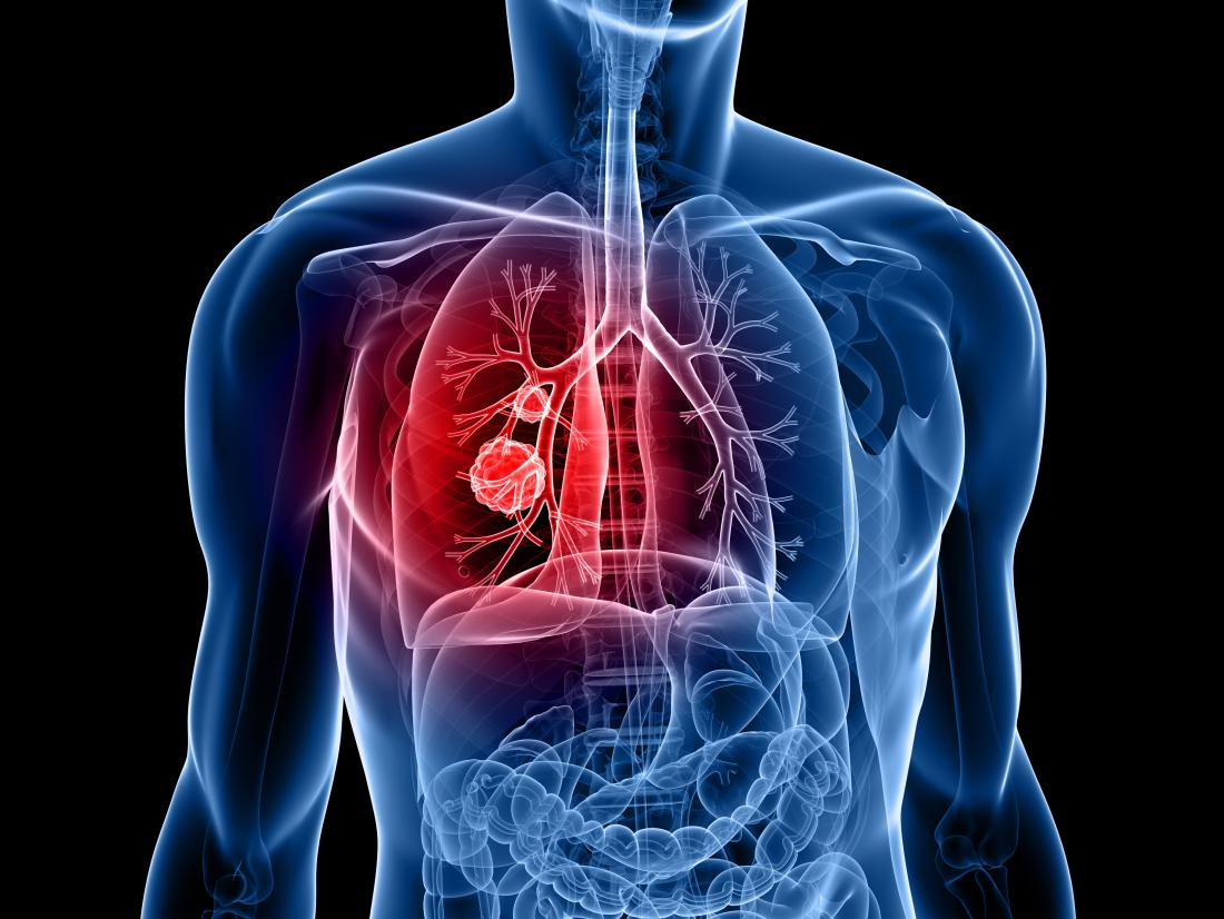 Lung Cancer Patient Must Read for Better Treatment