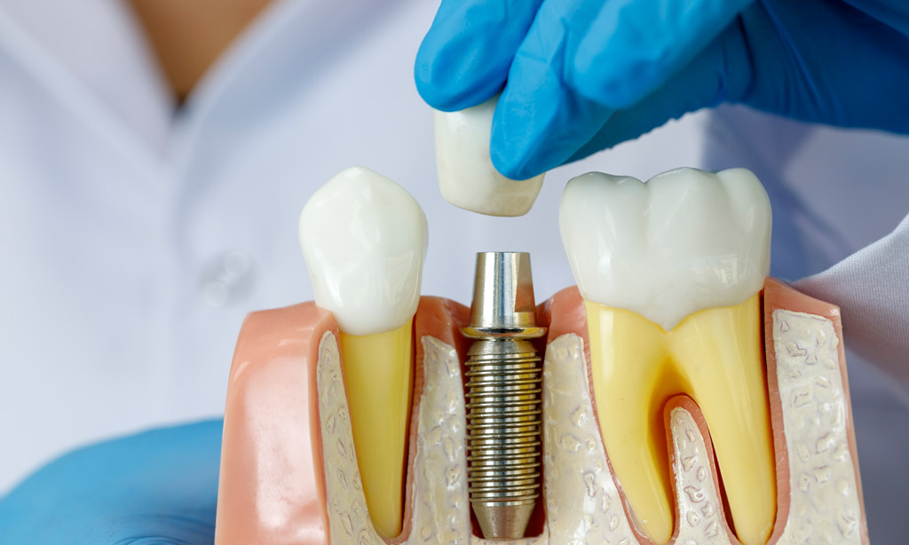 Visit A Top Dental Clinic Melbourne For Wisdom Tooth Removal