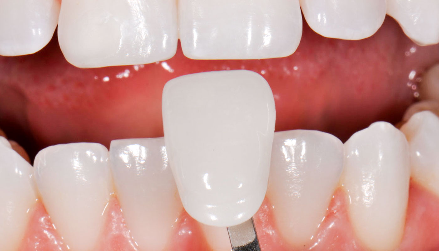 Things people want to know before opting for porcelain veneers Melbourne professional Services