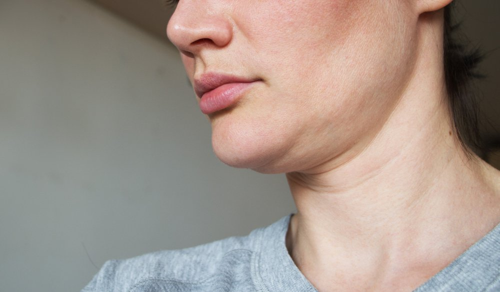 What Are The Effective Ways To Get Rid of The Double Chin
