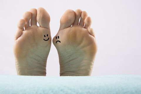 How to Treat a Bunion Without Surgery?