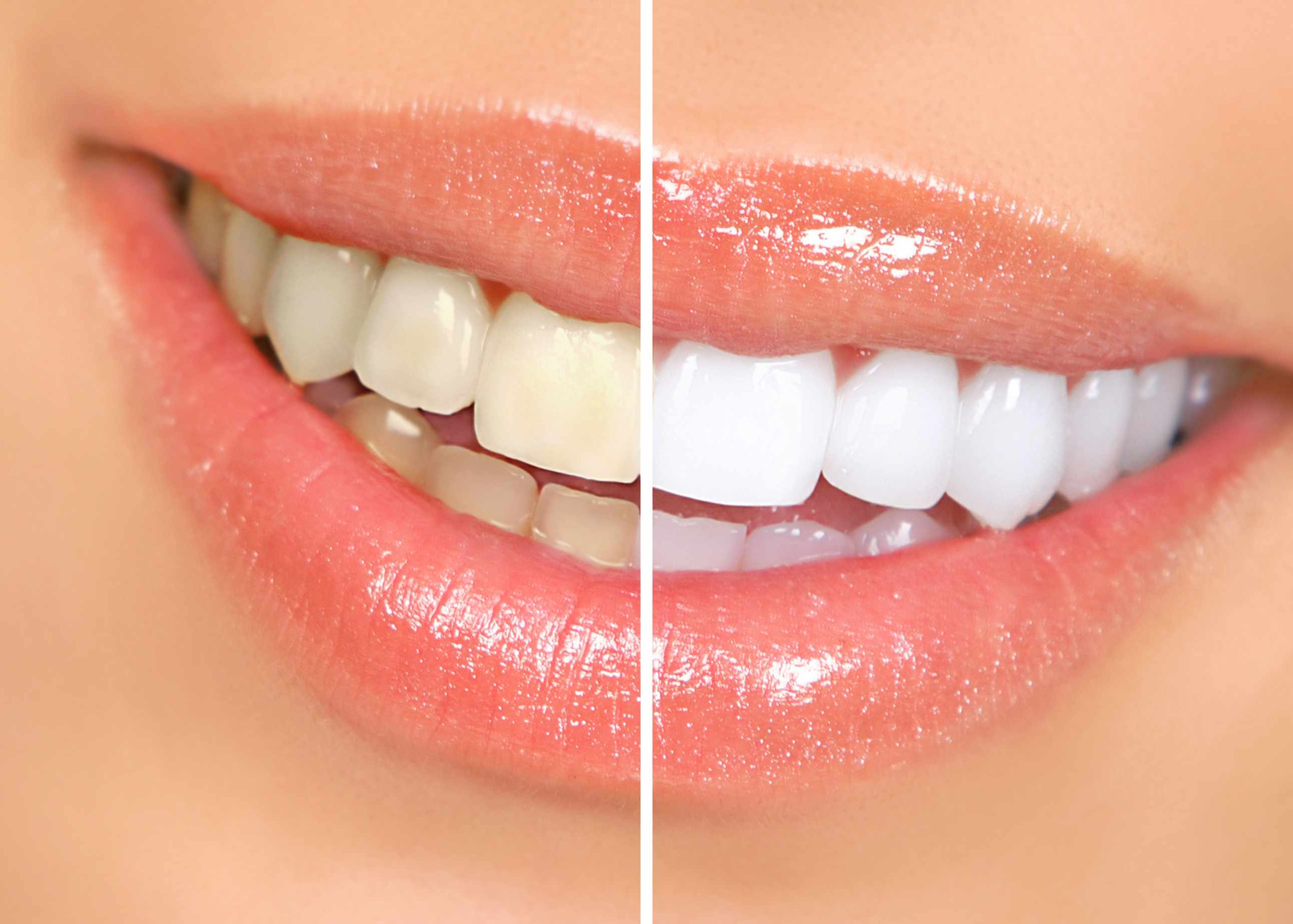 Get Good Dental Care to Invite Smile and Happiness in Life