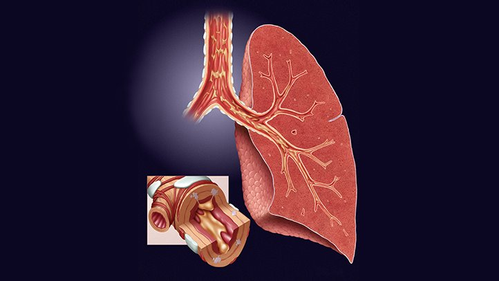 How Can You Treat Chronic Bronchitis If You Suffer From It?