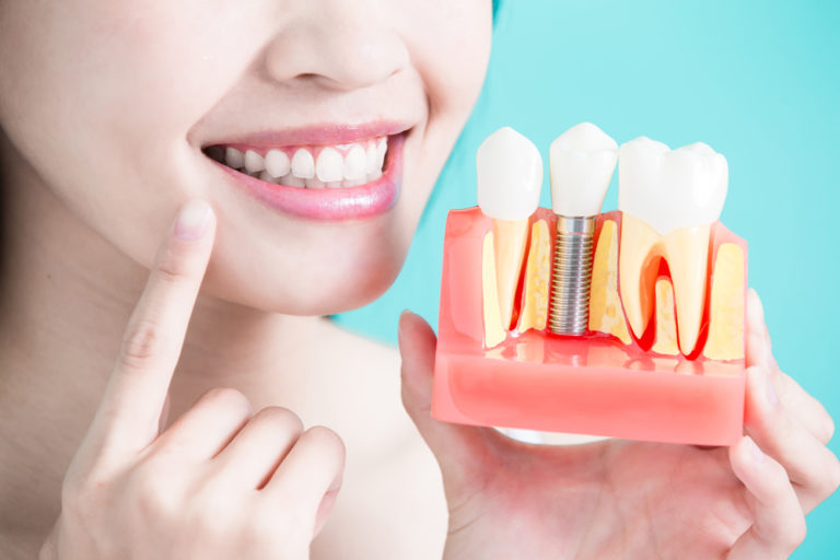 Dental-Implants-Process-