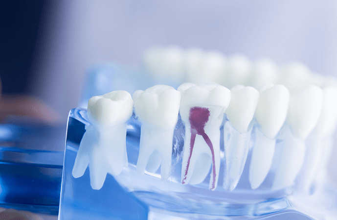 Get Root Canal Melbourne Professional Services to Save Infected Teeth
