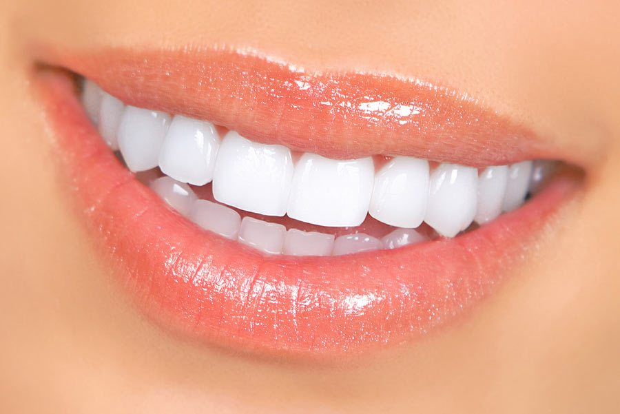 How to Find the Best Dental Clinic for the Procedure of Porcelain Veneers in Auckland?
