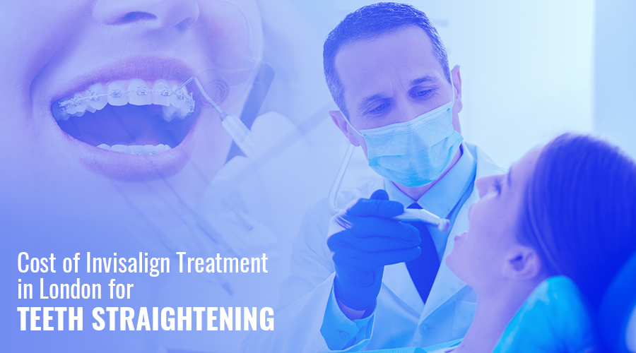 Cost of Invisalign Treatment in London for Teeth Straightening