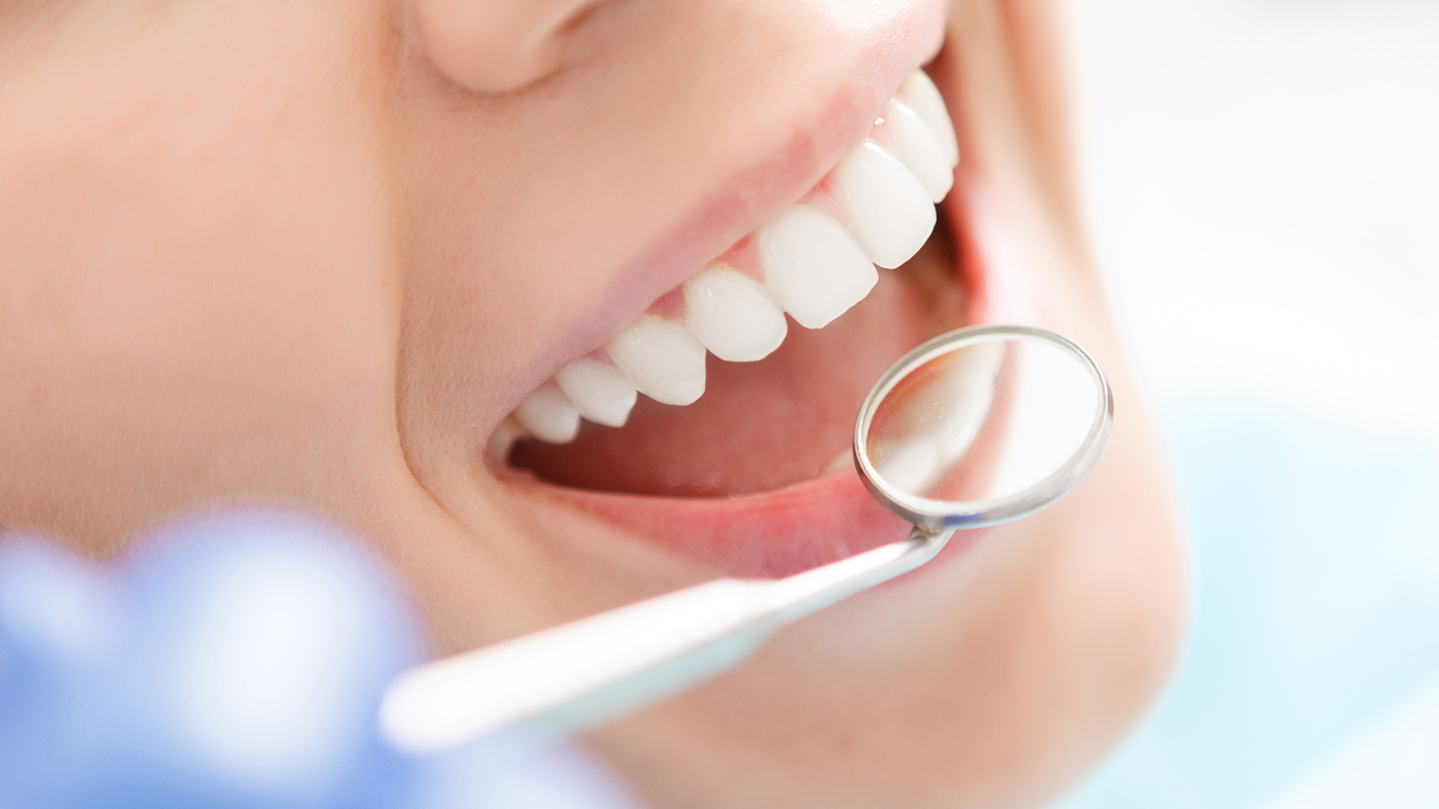 Where to Get Dentures and Zoom Whitening in Auckland CBD To Do?