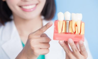 5 Things You Should Know About Dental Implants jpg