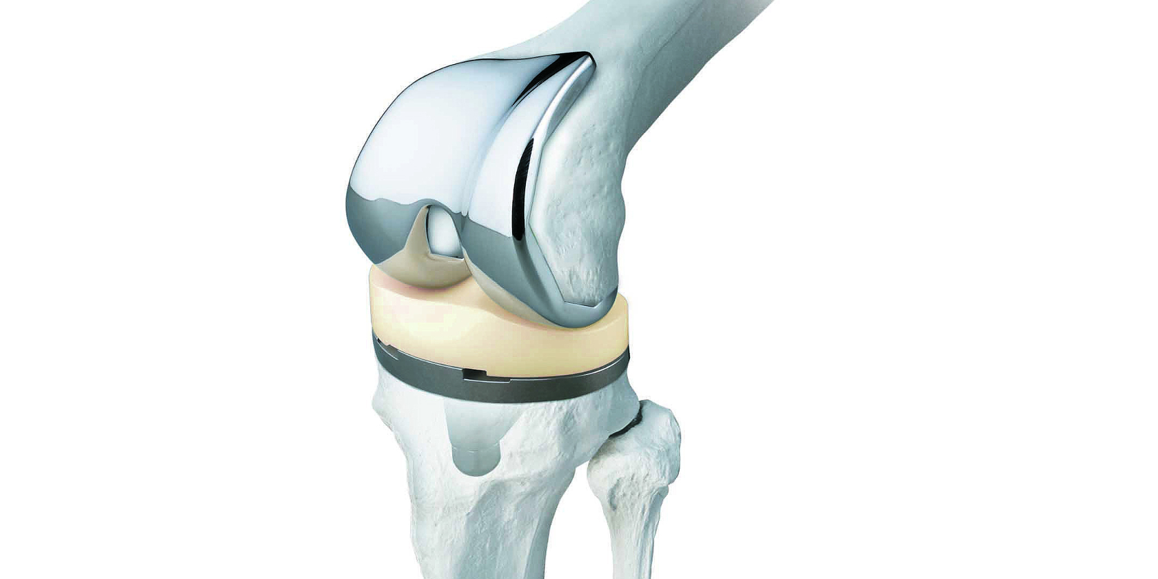 Why Choose The Best Orthopaedic Implants Manufacturers For Your Joint Needs?