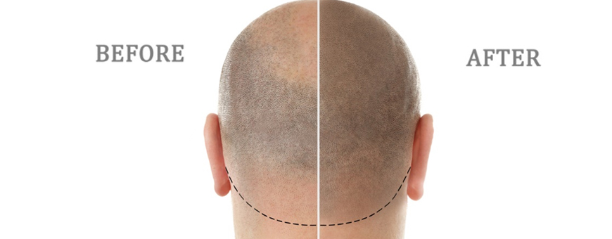Perks of Scalp Micropigmentation
