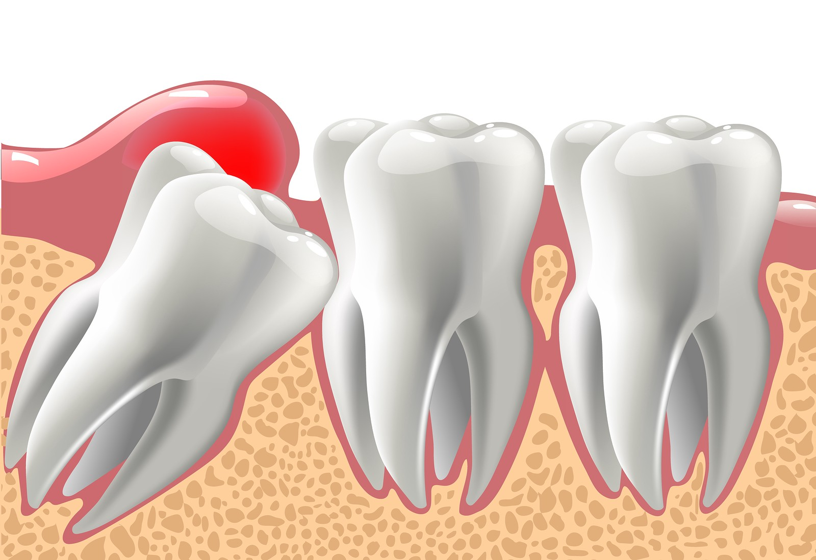 Potential Benefits of Wisdom Tooth Extraction For Better Living