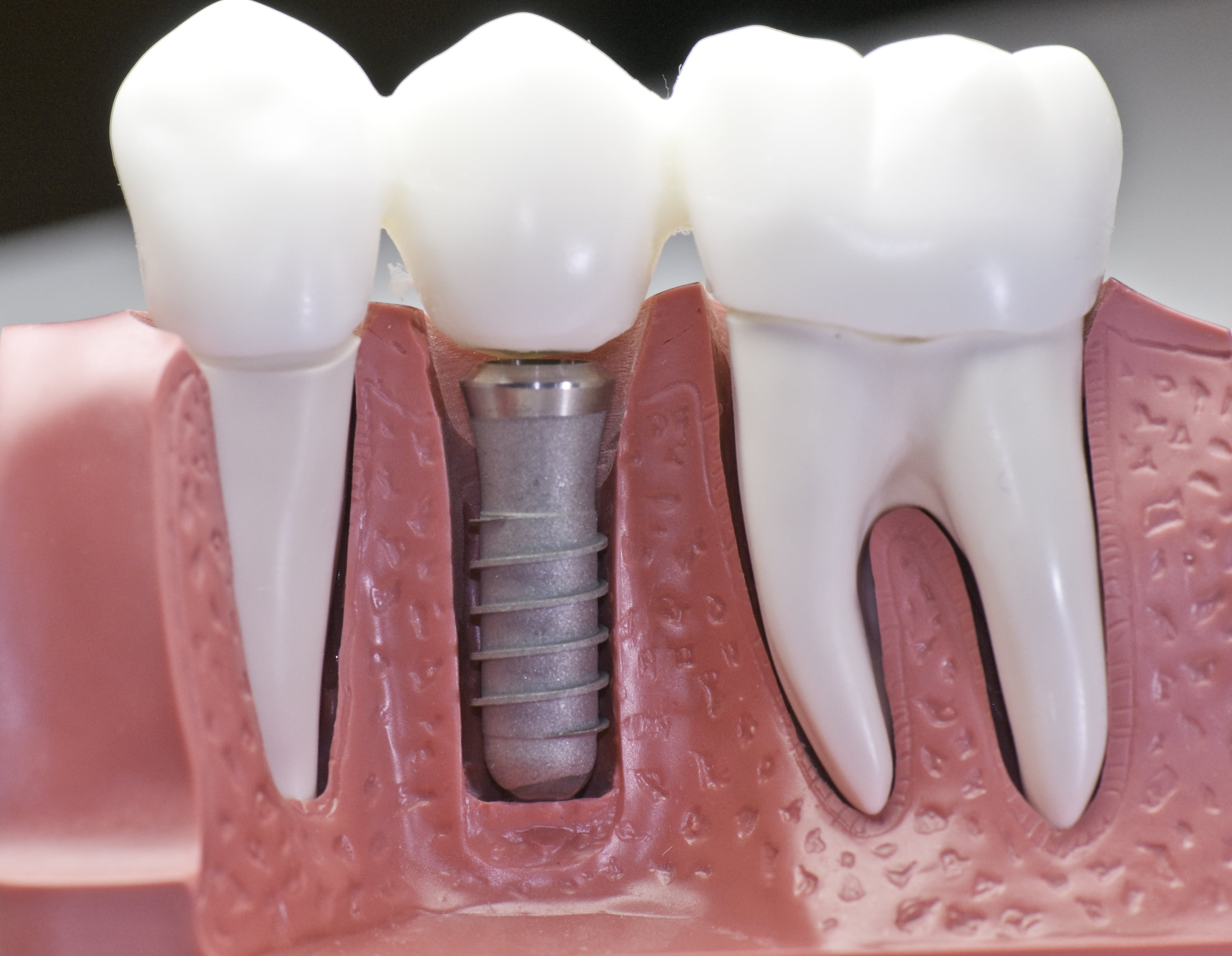 Dental Implants Treatment Experts Share Vital Information About Implant