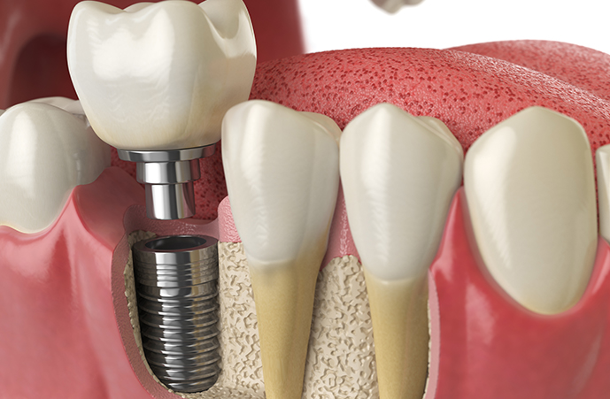 The professionals' works for Holistic Dental Melbourne CBD that helps patients undergoing dental and other oral issues with dental implant treatment. If you are looking for skilled orthodontist near you this is the right place.