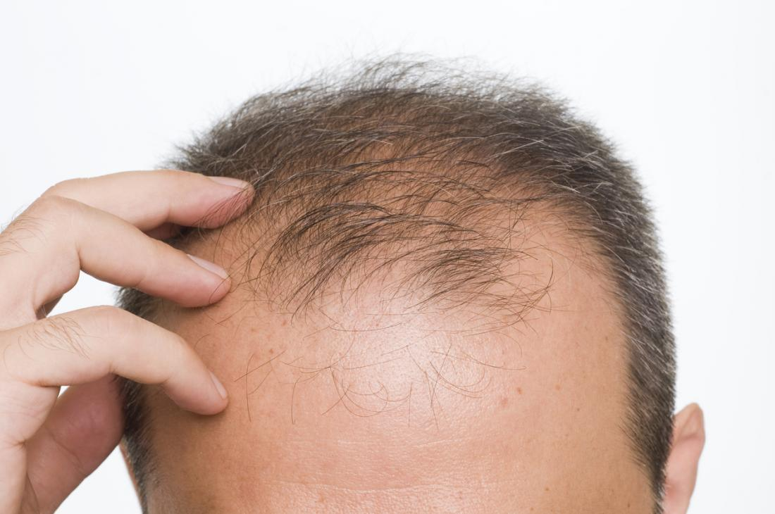 Hair Transplant Surgery Pros and Cons