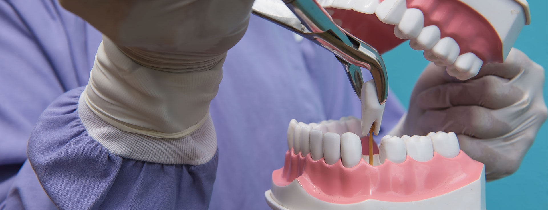 Get the Best Services of Surgical Extractions in Auckland