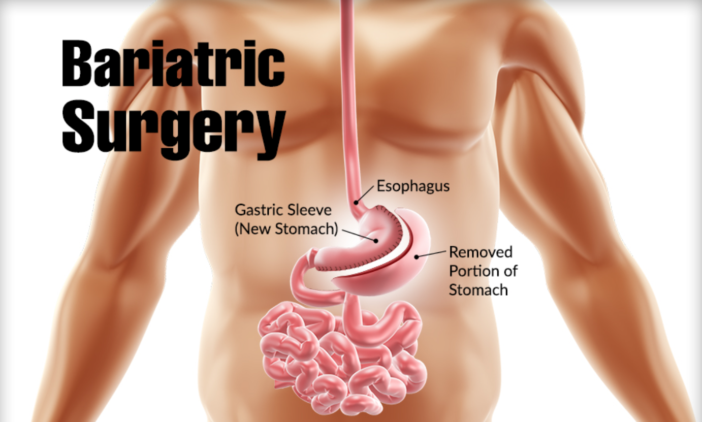 Bariatric Surgery in Pune- All You Need To Know