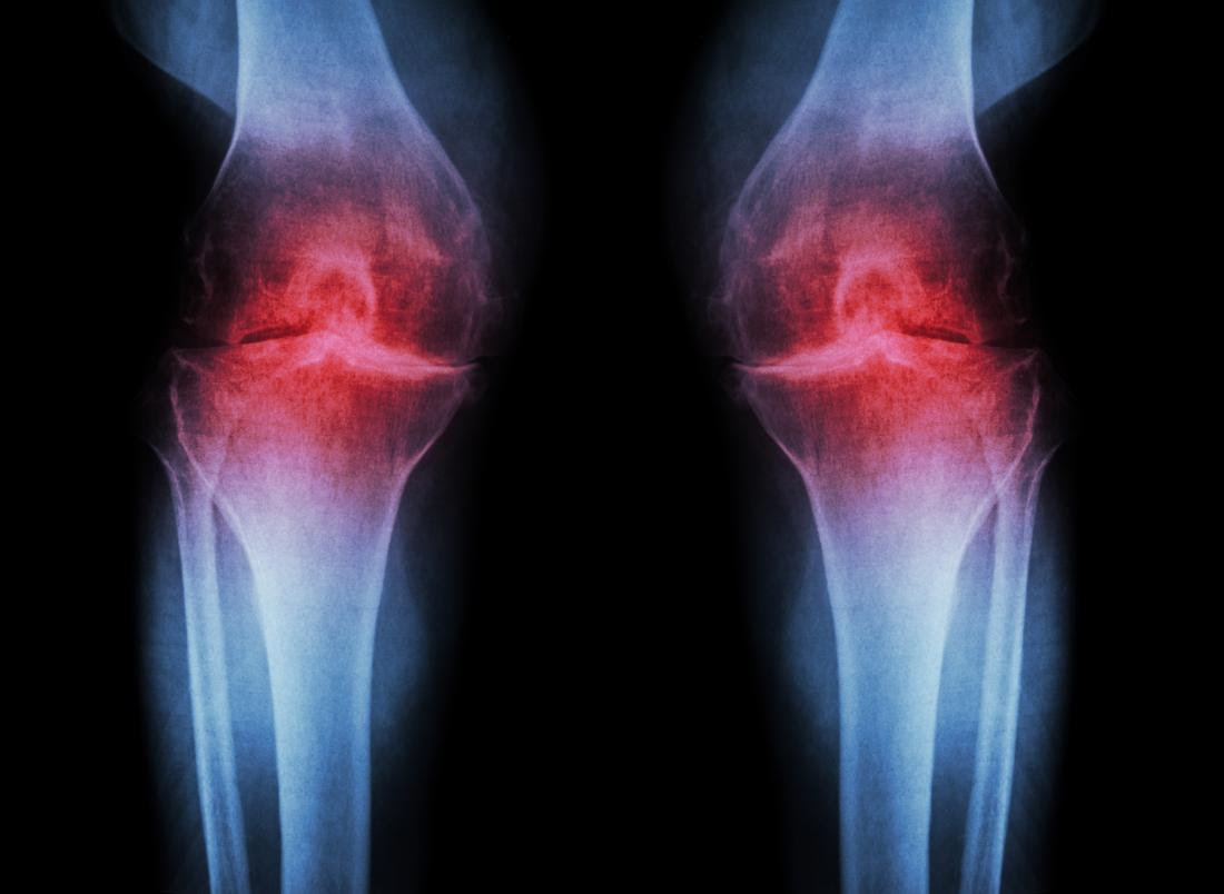 Osteoarthritis – All You Need To Know Explained by Dr Sandeep Singh