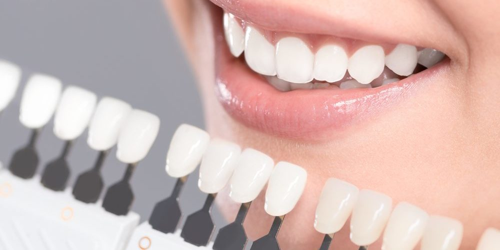 Questions to Ask Your Cosmetic Dentist in Tarzana Before a Treatment