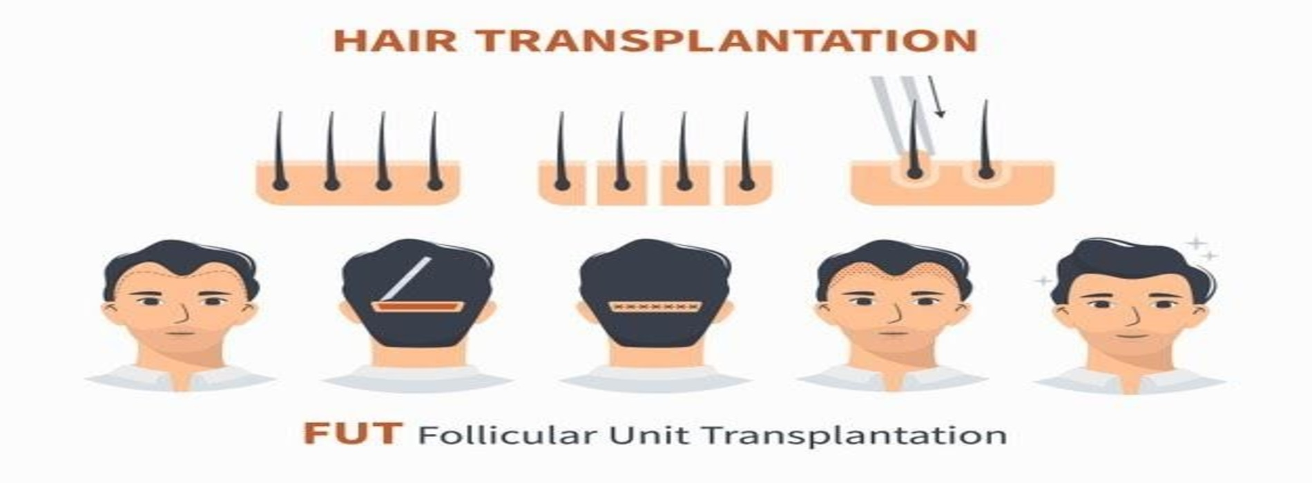 In Jaipur, How Much Does a Hair Transplant Cost?
