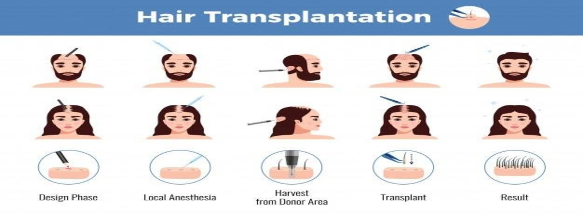 How Much Does Hair Transplant Cost in Hyderabad