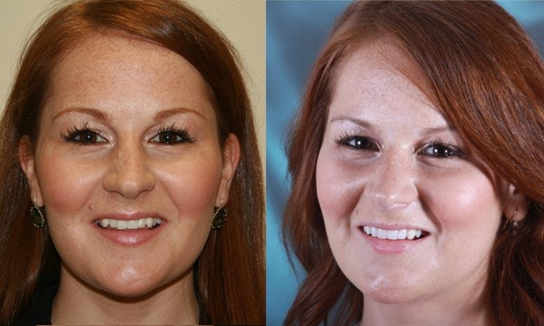Renew Beauty & Confidence with a Smile Makeover